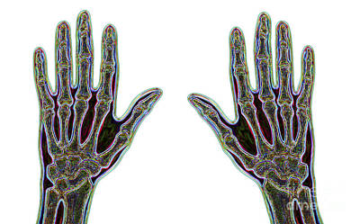 Carpal Tunnel Syndrome Poster