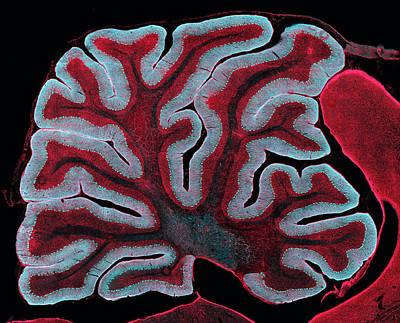 Cerebellum From A Brain Poster