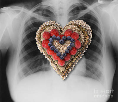 Chest X-ray & Heart-healthy Foods Poster by Gwen Shockey