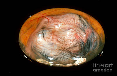 Chick Embryo On 17th Day Poster by Jerome Wexler