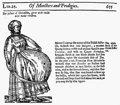 Childbirth Anomalies Poster