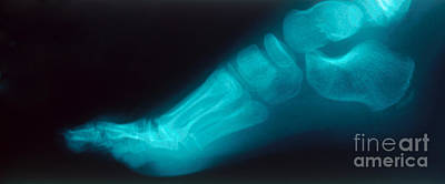 Childs Foot, X-ray Poster by Susan Leavines