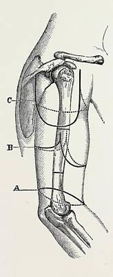 Circular Inclined Amputation, Medical Equipment Poster