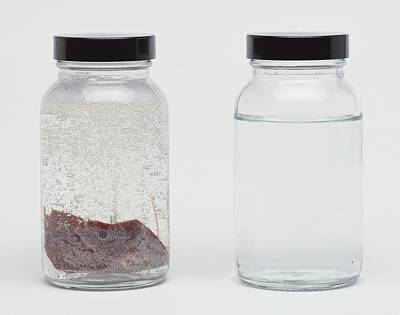 Clear Jar Of Liver In Liquid Poster by Dorling Kindersley/uig