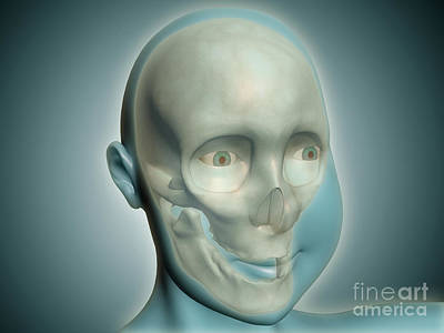 Close-up View Of Human Skull With X-ray Poster by Stocktrek Images