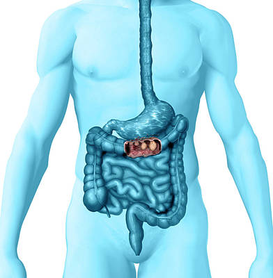 Colon Cancer Poster by Carol & Mike Werner