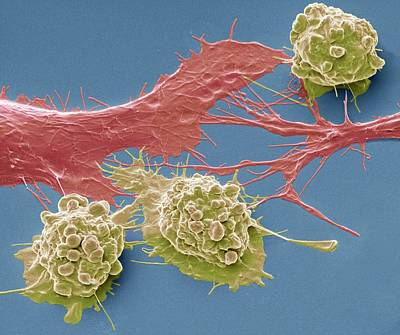 Colorectal Cancer Cells Poster by Steve Gschmeissner