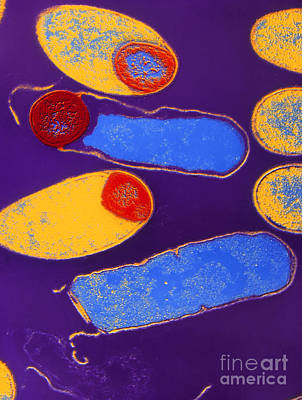 Colored Tem Of Clostridium Botulinum Poster by A. Barry Dowsett