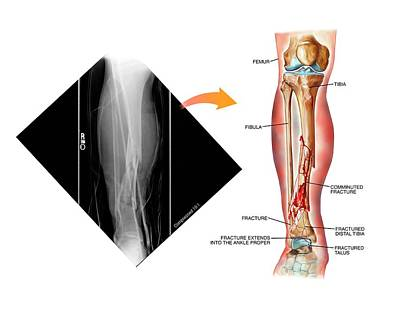 Comminuted Fracture Of The Tibia Poster by John T. Alesi