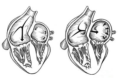 Comparison Of Normal Heart Versus Heart Poster by Enid Gottlieb