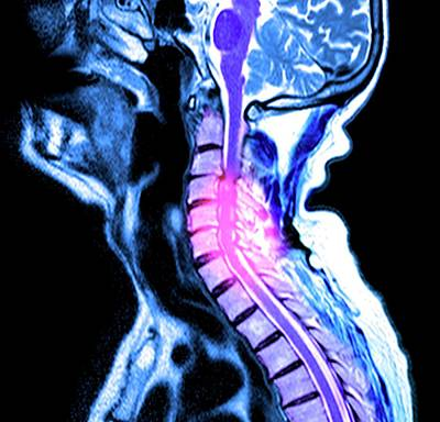 Compressed Spinal Cord Poster by Du Cane Medical Imaging Ltd
