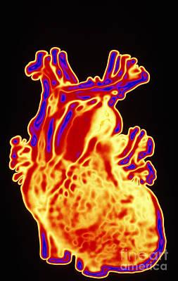 Computer Enhanced Heart Poster