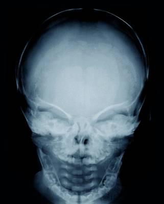 Congenital Hypothyroidism Poster by Zephyr