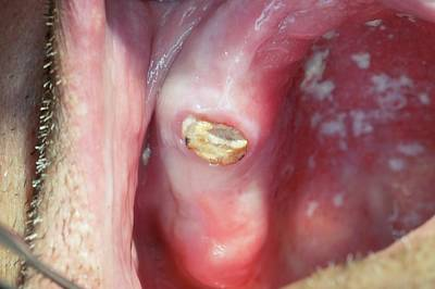Decayed Premolar Tooth Poster