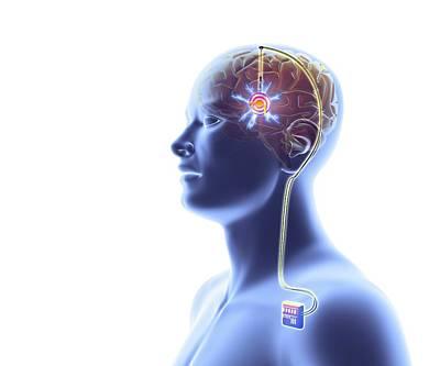 Deep Brain Stimulation Poster by Alfred Pasieka