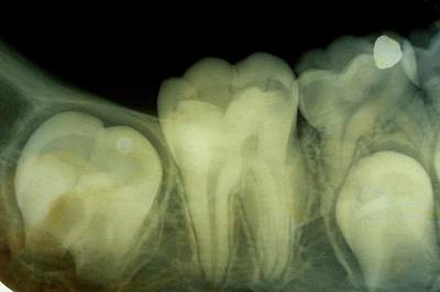 Dental X-ray Poster