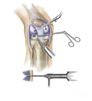 Detail Of Human Knee Showing Insertion Poster by TriFocal Communications