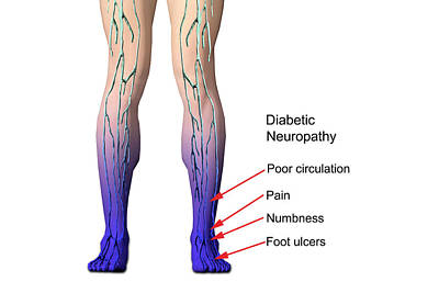 Diabetic Neuropathy Poster by Carol & Mike Werner