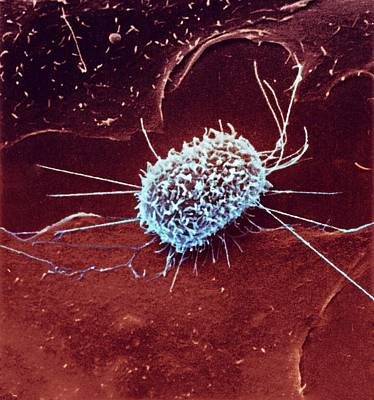 Dividing Cancer Cell Poster by Ami Images/national Cancer Institute