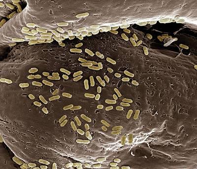 E. Coli On A Membrane Poster