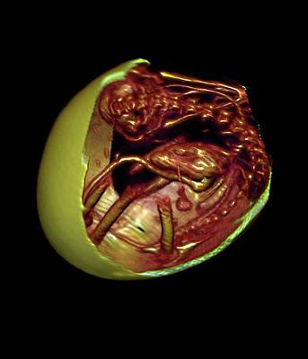 Egg And Embryo Skeleton Poster by Anders Persson, Cmiv