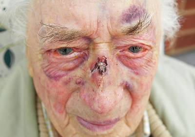 Elderly Man's Face After Fall Poster by Tony Craddock