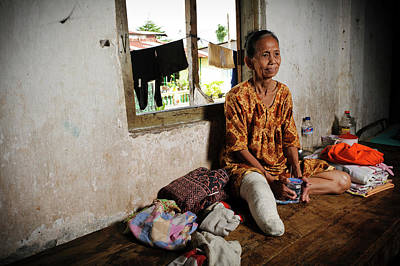 Elderly Woman With Leprosy Poster