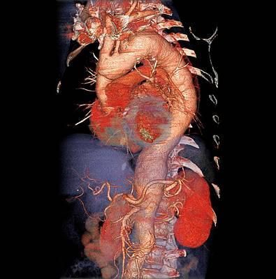 Enlarged Aorta Poster