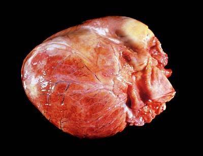 Enlarged Heart In Acromegaly Poster by Pr. R. Abelanet - Cnri