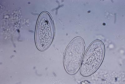 Enterobius Vermicularis Poster
