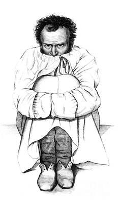 Esquirol Patient, Dementia, 1838 Poster