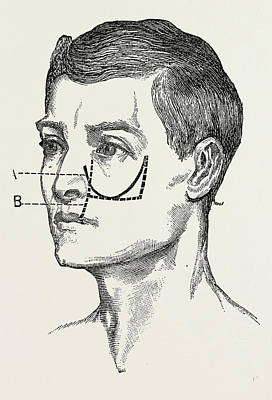 Excision Of The Tipper Jaw, Medical Equipment Poster