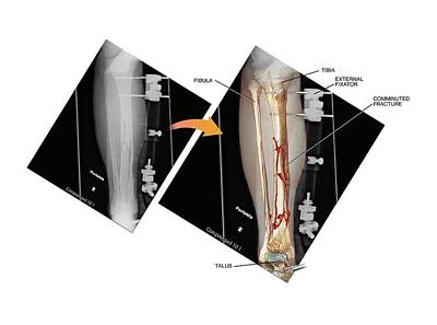 External Fixation Of Fractured Tibia Poster by John T. Alesi