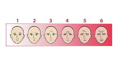 Faces Pain Scale Poster by Jeanette Engqvist