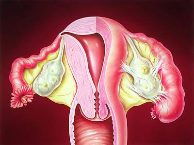 Fallopian Tube Inflammation Poster by John Bavosi