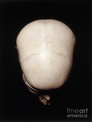 Female Human Skull Poster by John Davis / Dorling Kindersley