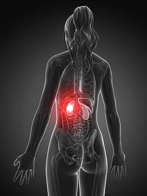 Female Kidney Failure Poster