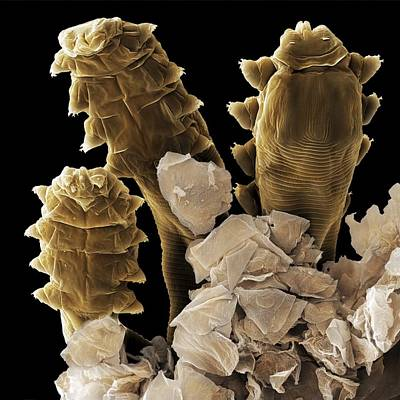 Follicle Mite Heads (sem) Poster by Science Photo Library