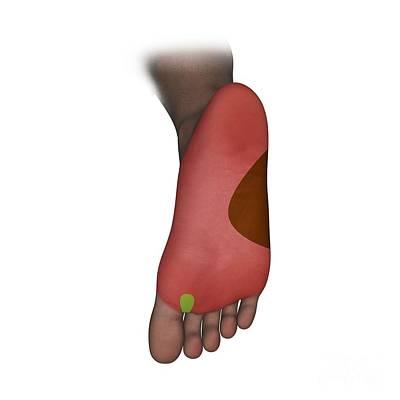 Foot Plantar Nerve Regions, Artwork Poster by D & L Graphics