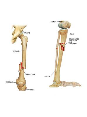 Fractures Of The Femur And Tibia Poster by John T. Alesi
