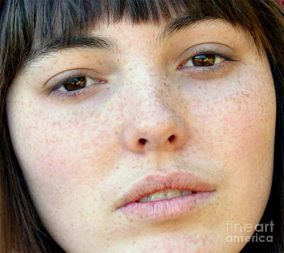 Freckle Faced Beauty Model Closeup Poster