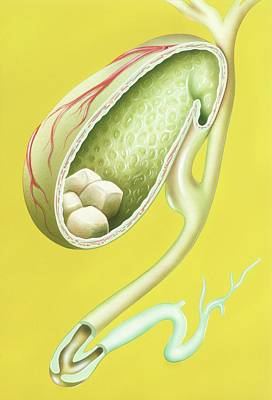 Gallstones In Gallbladder Poster by John Bavosi
