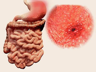 Gastric Ulcer Poster by Juan Gaertner