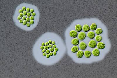 Gonium Sp. Green Alga Poster by Gerd Guenther