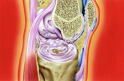 Gout In Knee Joint Poster