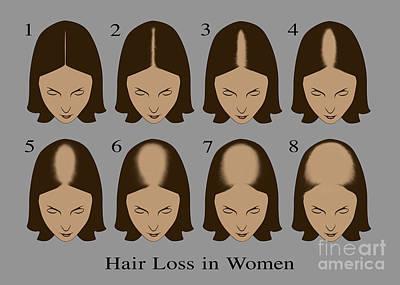 Hair Loss Poster by Gwen Shockey