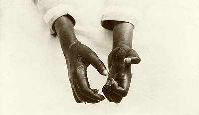 Hands Disfigured By Leprosy Poster