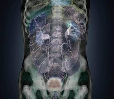 Healthy Abdomen Poster by Zephyr