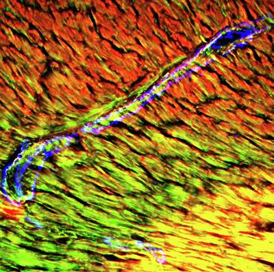 Heart Arteriole Poster by R. Bick, B. Poindexter, Ut Medical School
