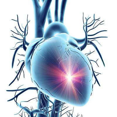 Heart Attack Poster